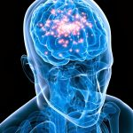 Dieta ketogenica in epilepsie