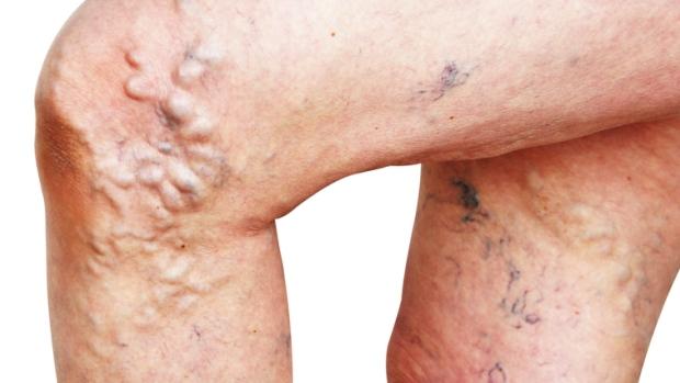 Il varicosity da quello che si alza a uomini