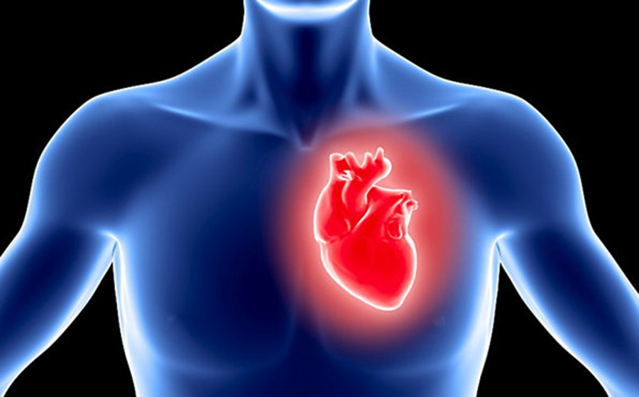 Infarctul miocardic – cauze, simptome, tratament si complicatii