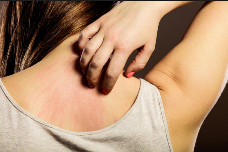 Bataturi care nu se vindeca sau mancarimi pe piele dese? ATENTIE! Iata ce boli prevestesc aceste simptome banale!