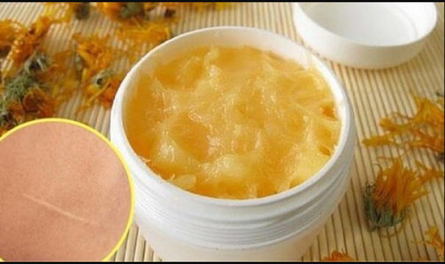 Crema naturala care vindeca RAPID taieturile si cicatricile