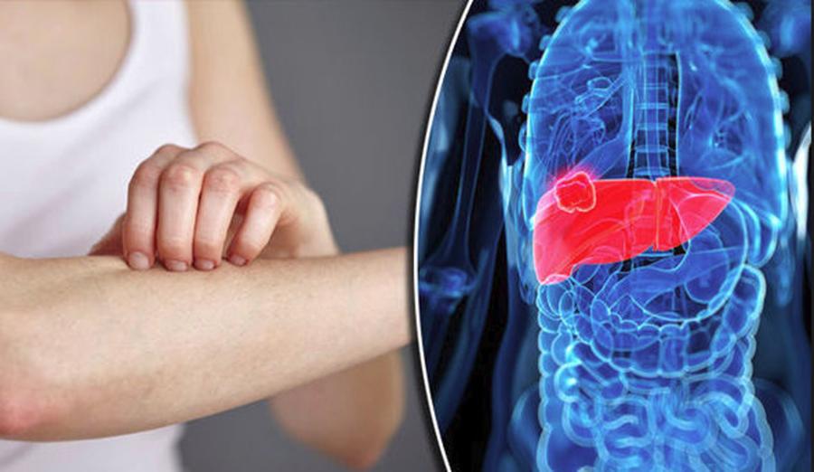 """Boala de ficat """"silențioasă"""" care poate duce la cancer sau ciroză. Cum o depistezi la timp?"""