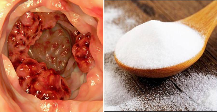 Acest Aditiv Cauzeaza Cancer Si Se Gaseste In Foarte Multe Alimente!