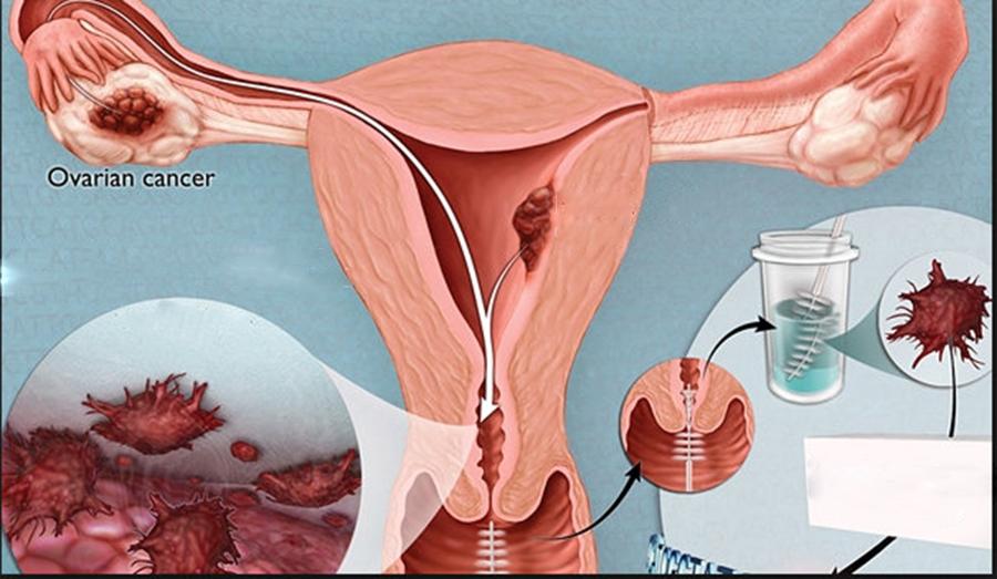 Simptome Ale Cancerului Ovarian Pe Care Femeile Nu Le Baga In Seama