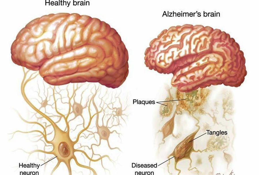 Lipsa Acestei Vitamine Creste Riscul Declansarii Maladiei Alzheimer