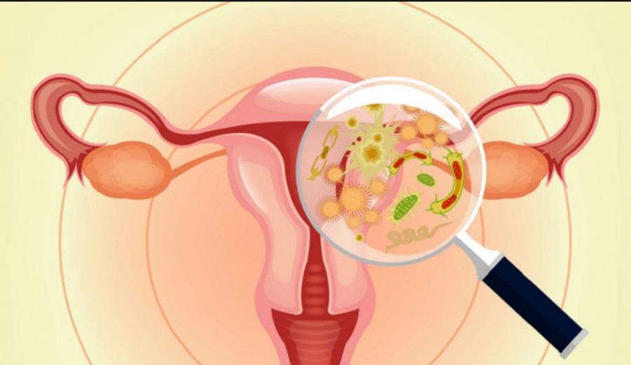 Remediu natural din doua ingrediente pentru infectiile vaginale