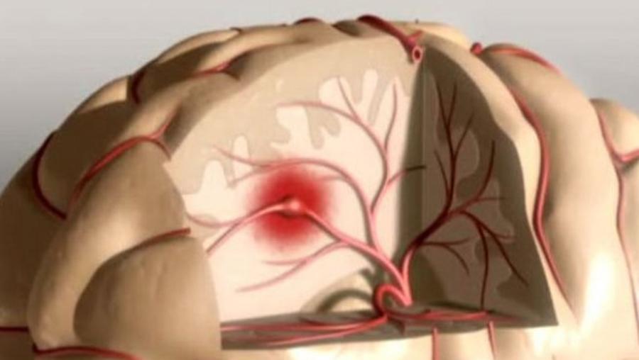 Principalele cauze ale accidentelor vasculare cerebrale