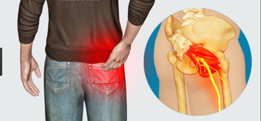 4 Tipuri de masaj care te ajuta sa scapi de durerea provocata de Sciatica