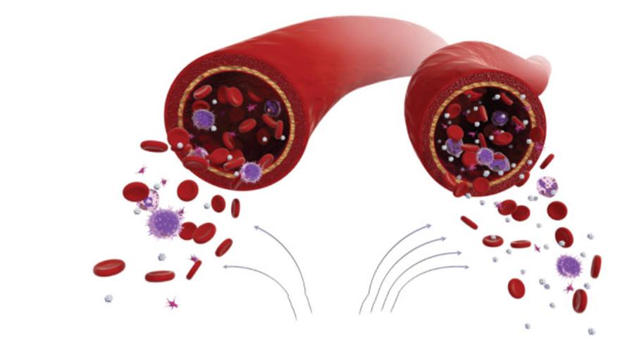 Cum poti sa scazi nivelul zaharului din sange cu ajutorul alimentelor