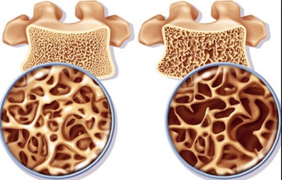Alimente care ajută la fixarea calciului în oase și previn osteoporoza