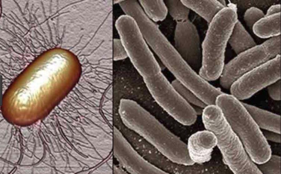 Simptomele care anunta infectia urinara