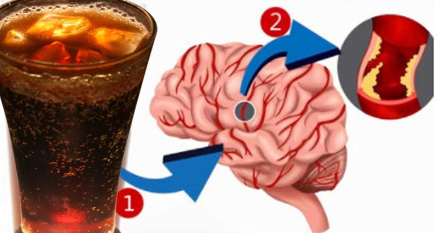 Vești proaste pentru creier: băuturile îndulcite artificial măresc riscul de accident vascular cerebral și demență