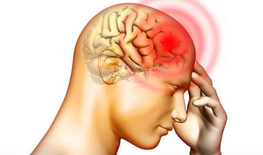"""Un neurochirurg cunoscut atrage atenția: """"Cel mai comun simptom al unei tumori cerebrale e acest tip de durere de cap"""""""
