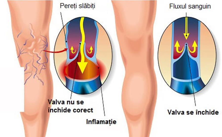 Cum se tratează corect varicele, boala care afectează un sfert din populatie