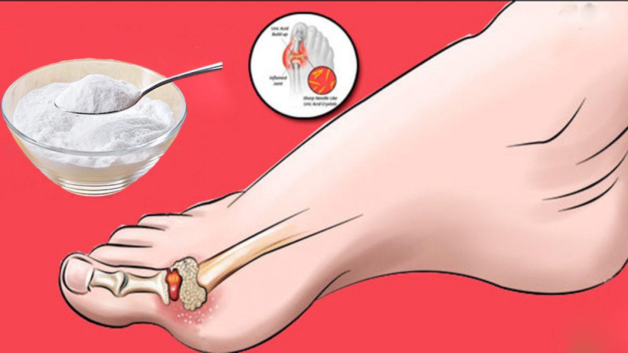 eliminare tofi gutosi de ce rănesc articulațiile și durerile osoase