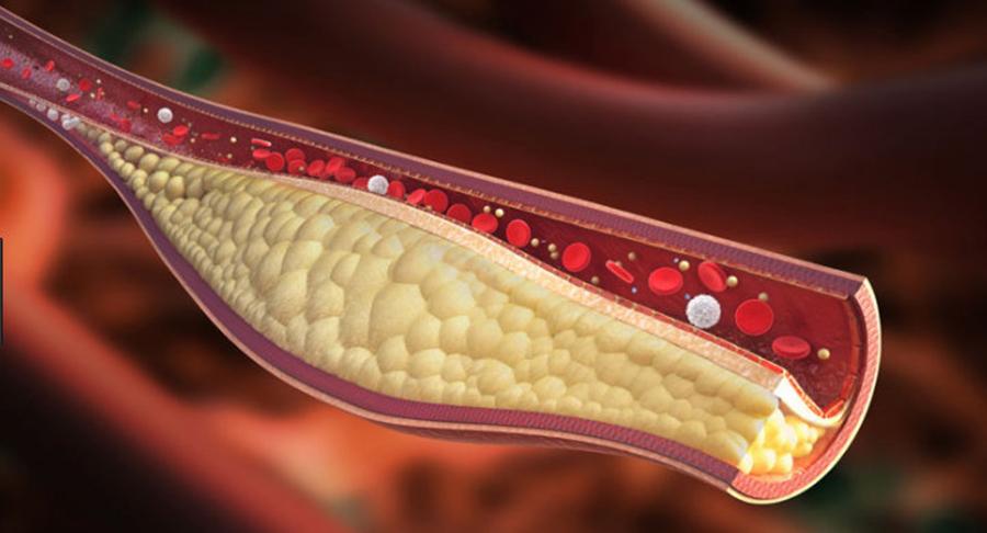 Colesterol mărit, diabet, boli de inimă? Toate cauzate de acest aliment