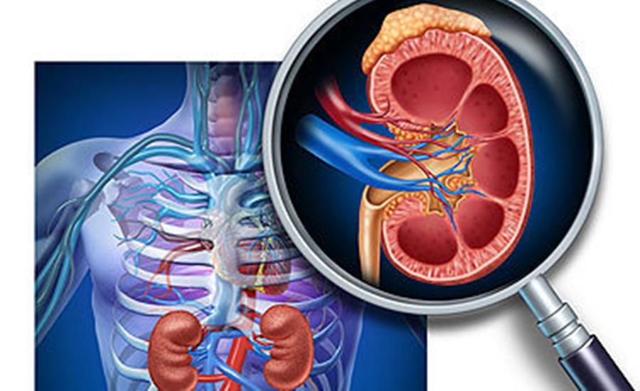 Ce trebuie sa stii despre litiaza renala (pietre la rinichi)