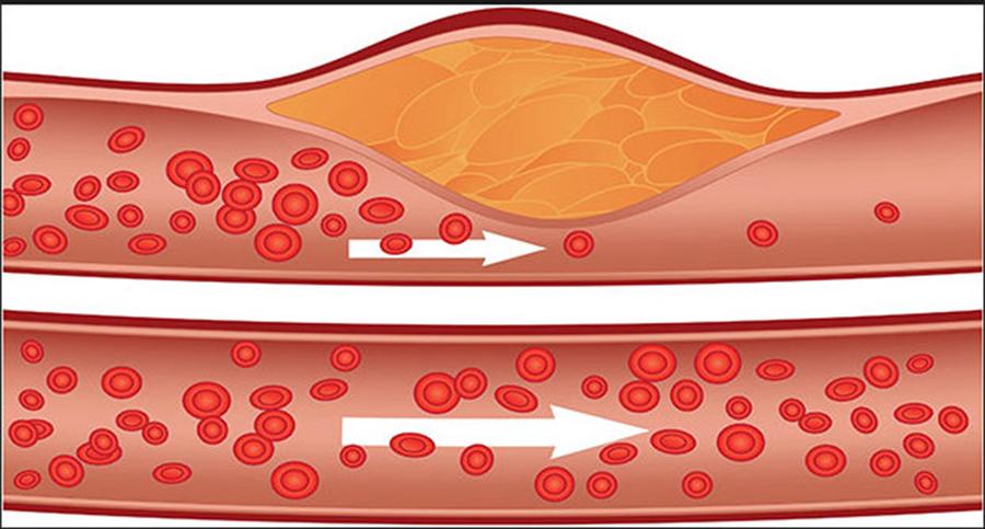 8 cauze ale colesterolului marit