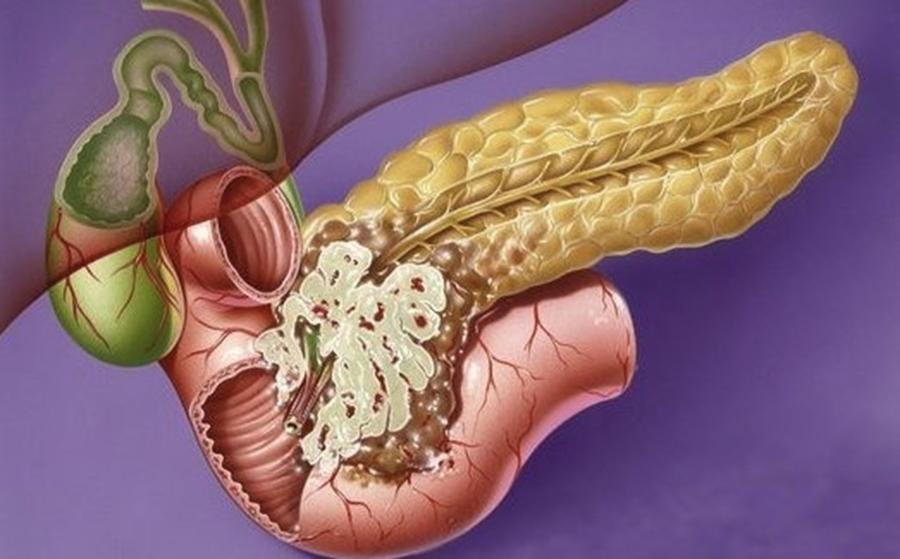 Curăţirea pacreasului. Cum se face corect detoxifierea pancreasului