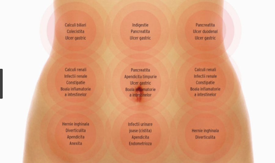 Dureri abdominale. Cele mai frecvente 20 de cauze ale durerii din zona abdomenului
