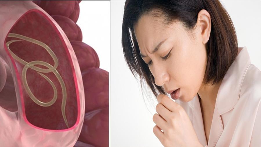6 Semne că ai paraziţi intestinali. Tusea seaca poate fi unul dintre ele
