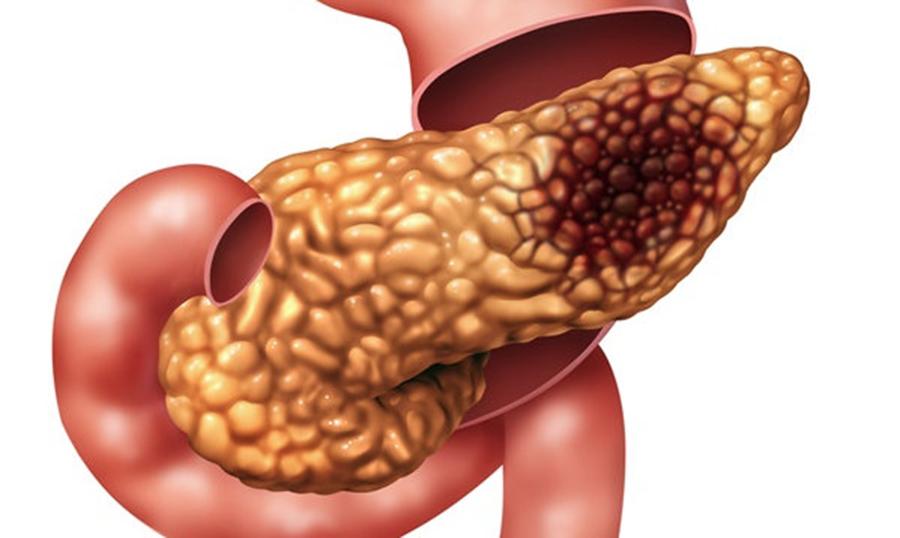 7 semne de alarma ale cancerului pancreatic, se care nu trebui sa le ignori