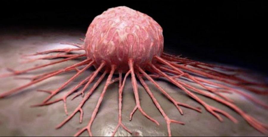 De ce se înmulțesc cancerele digestive în România. Un cunoscut medic avertizează