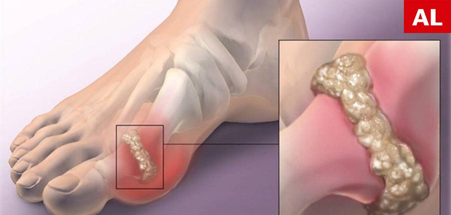 Cum Sa Elimini Rapid Cristalizarea Acidului Uric Din Corp Pentru A te Proteja De Guta Si Dureri Ale Articulatiilor