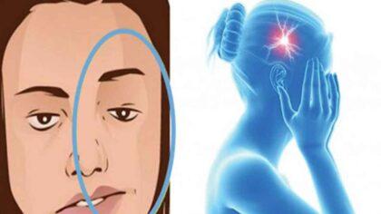 9 simptome ale accidentului vascular...
