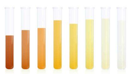 Culorile urinei si semnificatiile lor